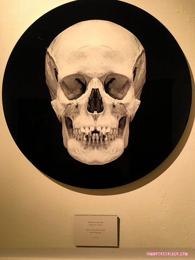 The Mutter Museum-5755