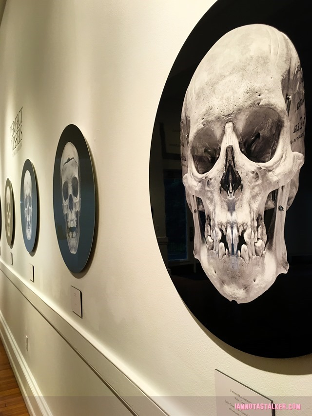 The Mutter Museum-5757